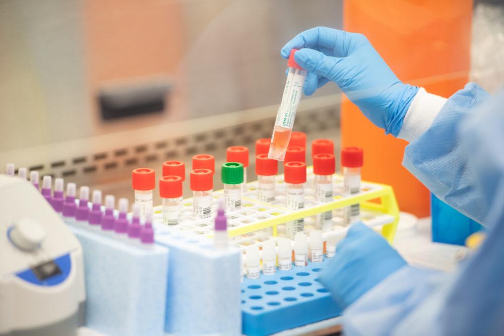 Coronavirus Diagnostics Market