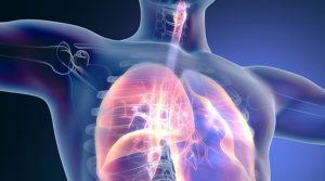 Acute Lung Injury Market